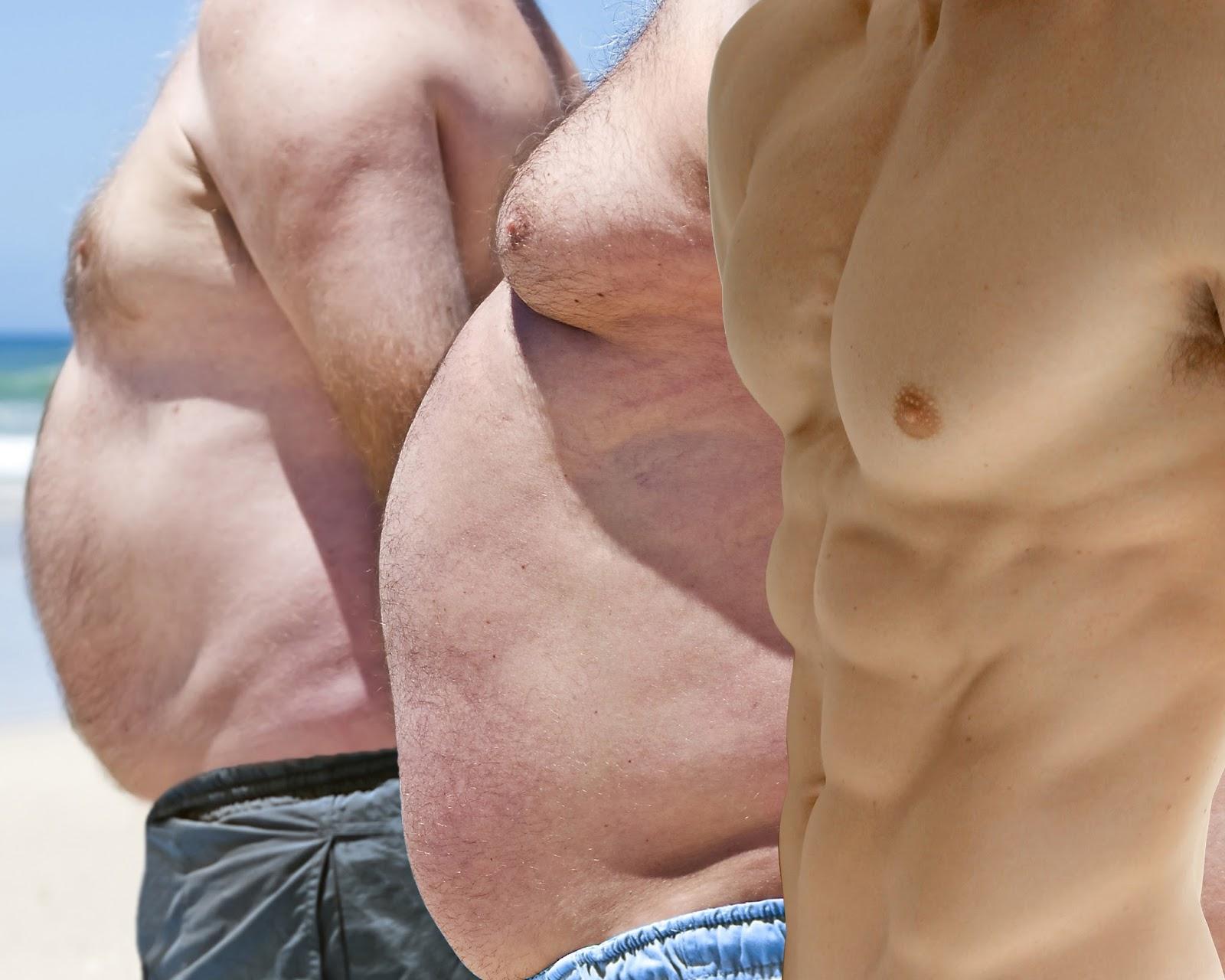 La Obesidad: Minuto Medico