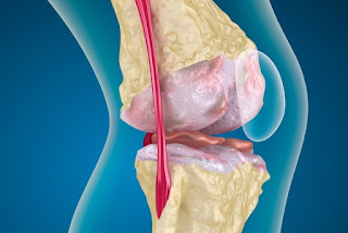 Causas do surgimento da Artrose
