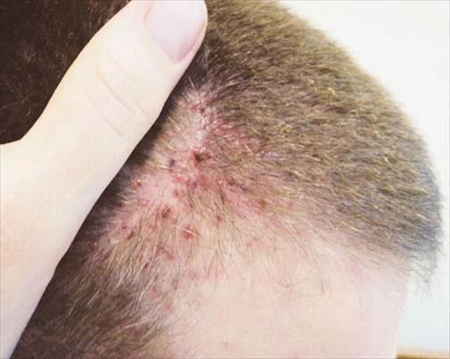 Les croûtes quest-ce que cest à atopitcheskom la dermatite