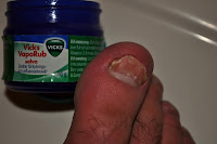 huskur mot nagelsvamp med Vicks Vaporub