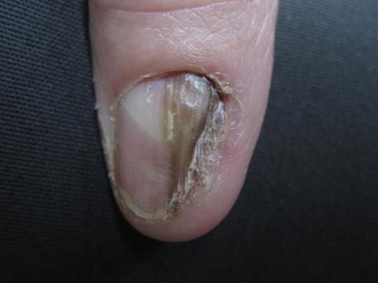Como curar las uñas en el hoyuelo