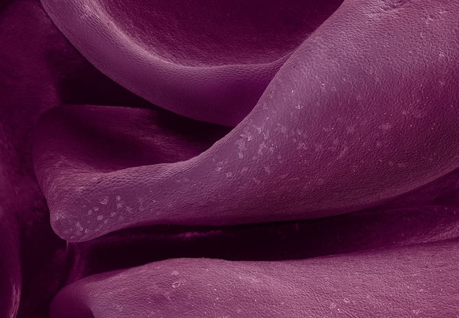 Microscopic Food Photography Seen On www.coolpicturegallery.us