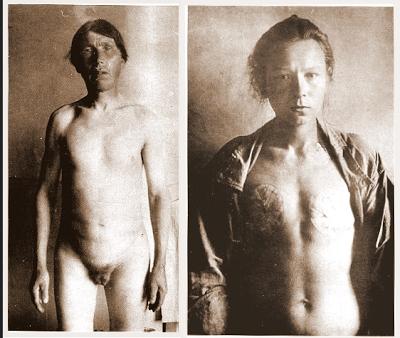 Varón y mujer Skopsty tras la automutilación. Lacasamundo.com