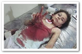 Kanak-kanak yang tercedera dalam peperangan di Syria