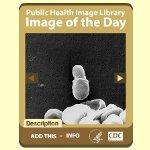 CDCアメリカ疾病予防管理センターブログパーツ