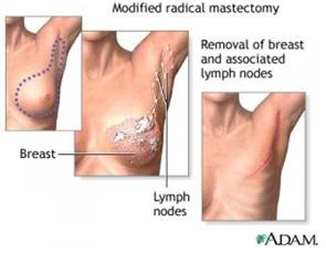 Mastektomi Dapat Mengobati Kanker Payudara