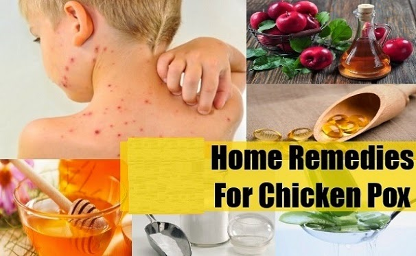 http://www.nhtips.com/2015/03/amezing-home-remedies-for-chickenpox.html