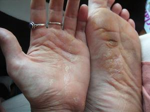 Atopichesky la dermatitis la manifestación el tratamiento