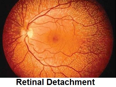 Retinal Detachment: Causes, Symptoms, Diagnosis And Treatment