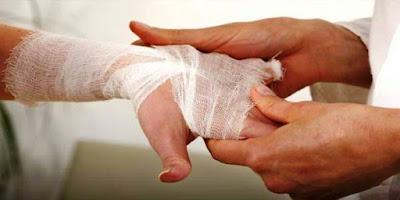 cara alami mengatasi menghilangkan luka bakar ringan
