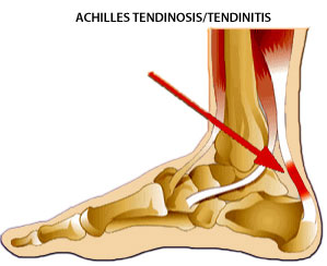 Tendonitis symptoms
