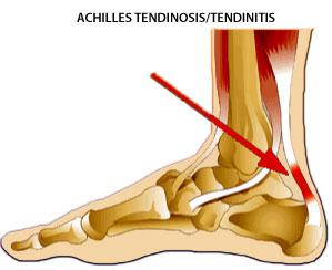 Tendonitis symptoms