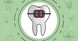 Odontologia para gestantes e bebês: A importância da prevenção