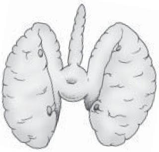 Kelenjar tiroid manusia