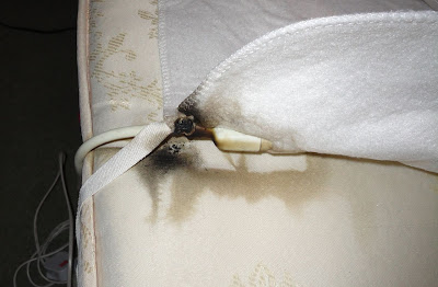 Faulty electric blanket
