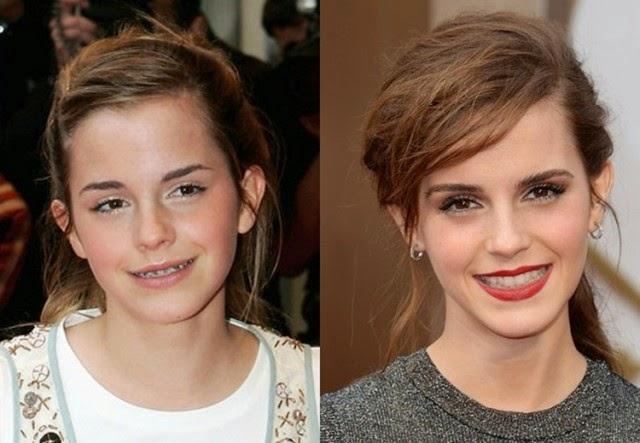 14 Selebriti Hollywood Membuktikan Pendakap Gigi Mampu Mengubah Wajah Sepenuhnya
