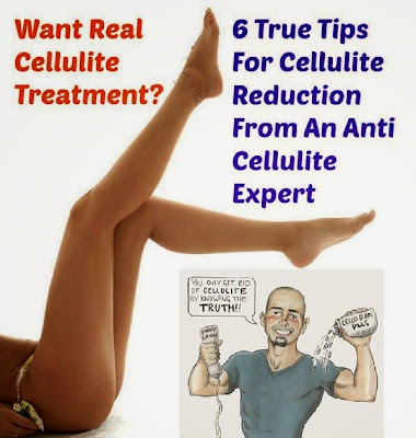 How to remove Cellulite