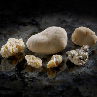 batu ginjal