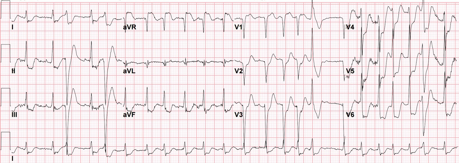 Understanding Atrial Fibrillation picture