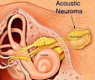 Acoustic Neuroma - Coping With Diagnosis Aftershock and Treatment Aftereffects
