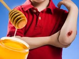 Honeyforwounds - 6 Fakta MADU DALAM PERUBATAN YANG Mungkin ANDA Tidak Tahu