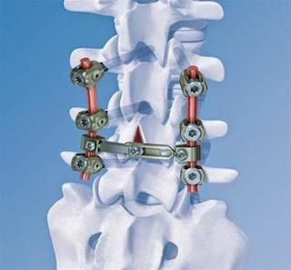 骨科植入物