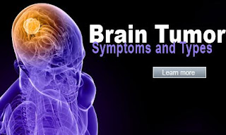Brain Cancer - Symptoms of Brain Cancer