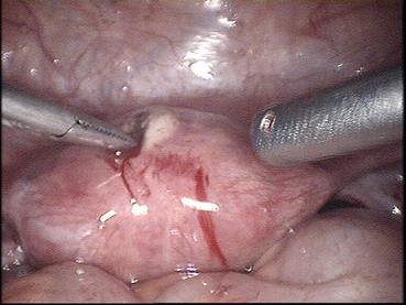 small right ovarian cyst