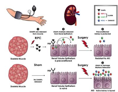 Multicenter study of perioperative