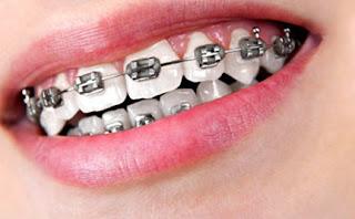 Cara Merawat Gigi Berbehel