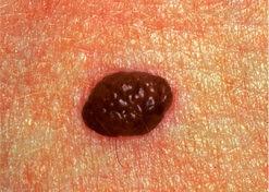 skin cancer spot