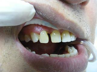 ayrık diş kapatma