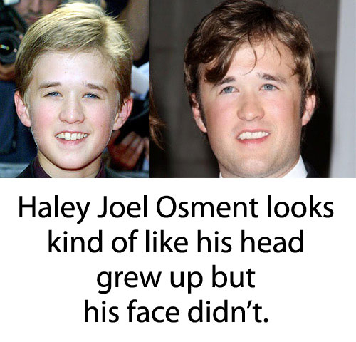 Haley Joel Osment Grown Up With Forever Young Face