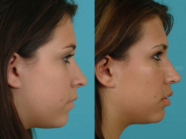 How to Fix A Crooked Nose With Rhinoplasty | Seattle ...