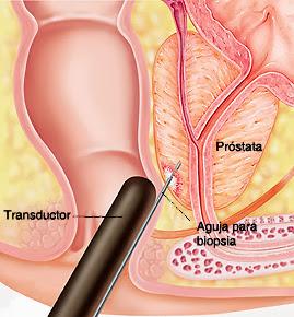 local escoltas masaje de próstata