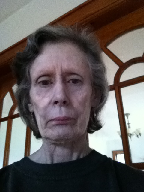 Rosemary's Medical Blog: What Argyria Looks Like