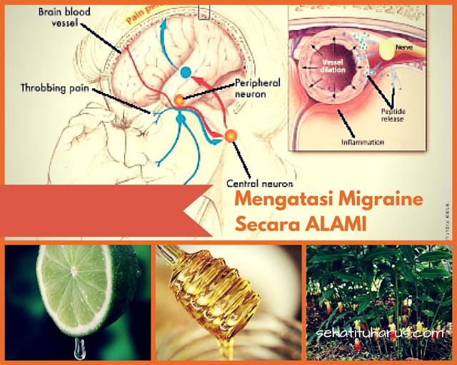 TERNYATA BEGINI Cara Mengatasi Migrain Secara Alami