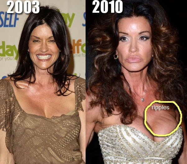 Worst Celebrity Breast Implants 10 Notoriously Bad Boob