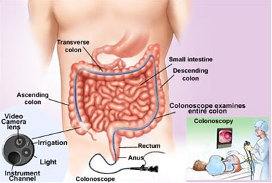 Colorectal Cancer Screening ICD 9 and CPT Codes