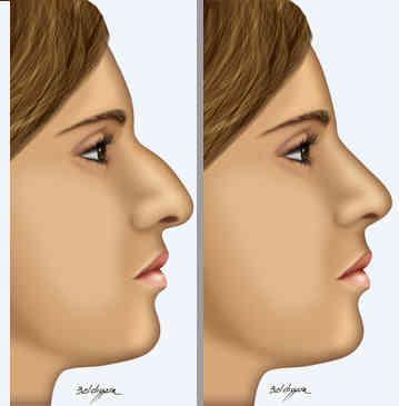rinoplastia-cirurgia-plastica-no-nariz