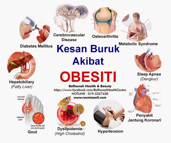 Implikasi Akibat Obesiti, Kesan Buruk Obesiti