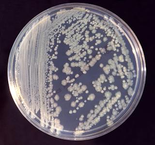 [Image: Enterobacter_cloacae_01.png]