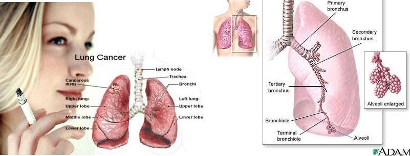 gallstones symptoms causes treatment