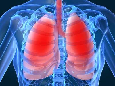 Obat Herbal untuk Menyembuhkan Edema Paru