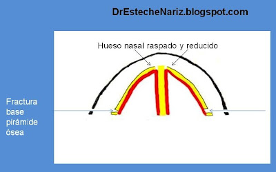 15 Fractura de base de pirámide nasal   Nasenkorrektur geschlossene Technik   16