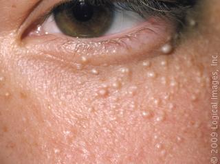 Librarse del acné del vídeo