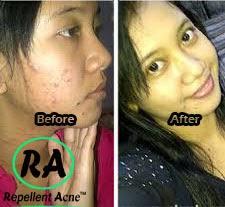 obat jerawat untuk kulit berminyak dan sensitif