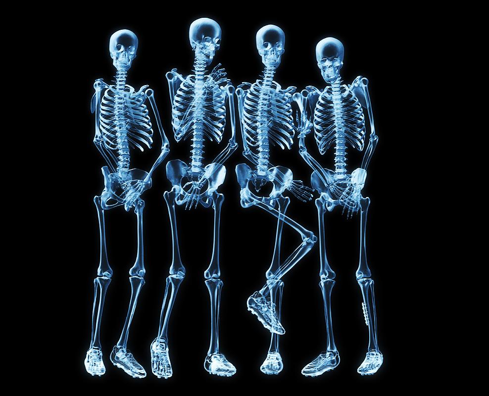 S Rie Tetos Longos Esqueletos A Sa Rem Dos Arm Rios
