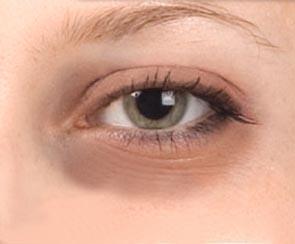 البقعة السوداء التي تحدث العين