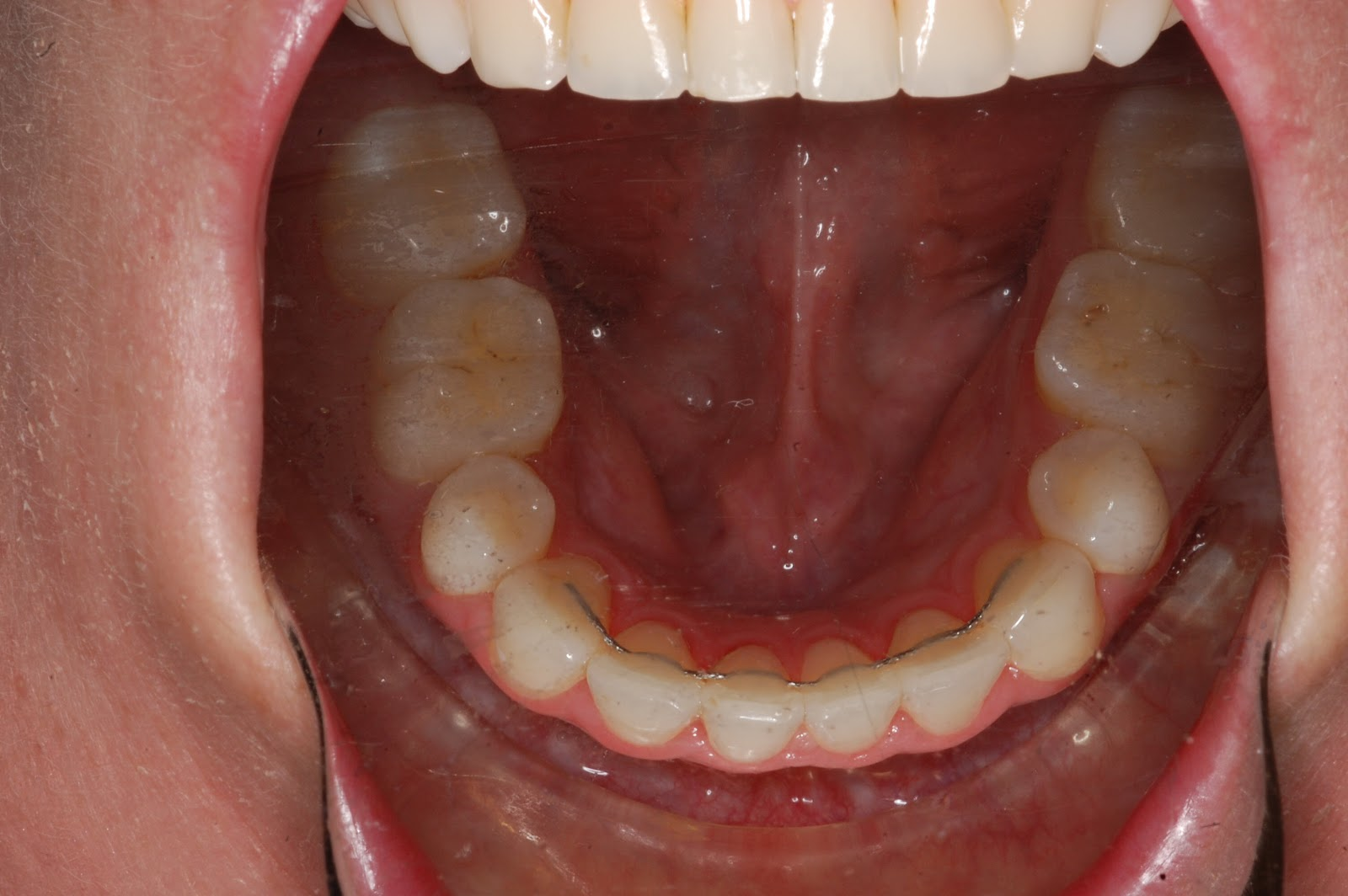 83+ Food Ideas For Jaw Wired Shut - Famous Jaw Wired Shut And Mri ...